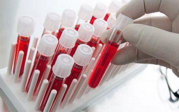 Какие анализы на гормоны при климаксе нужно сдавать и их нормы